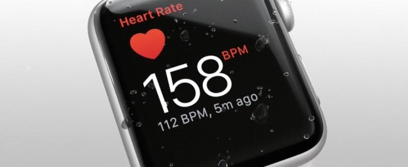 next-apple-watch